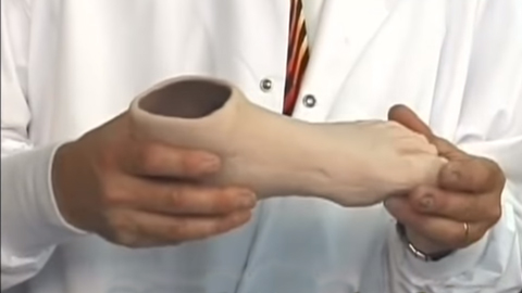 Custom Fabrication of a Renew™ Silicone Partial Foot Prosthesis