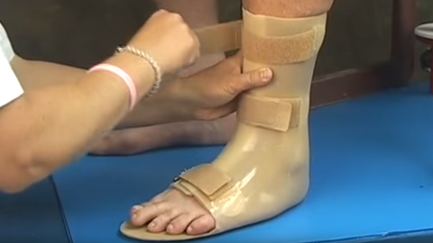 Fabrication of Custom Renew™ Urethane Ankle-Foot Orthoses